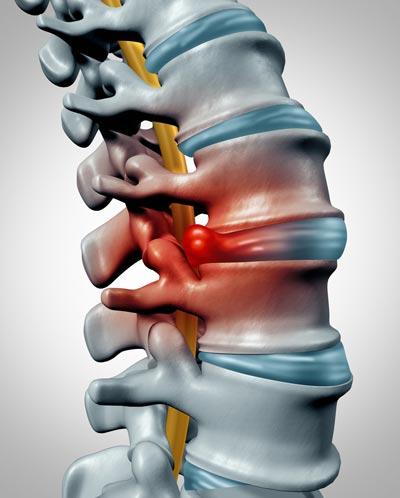Billede af rygrad med diskusprolaps. Behandling af ryg og lænd ved Kiropraktorcenter Lillebælt